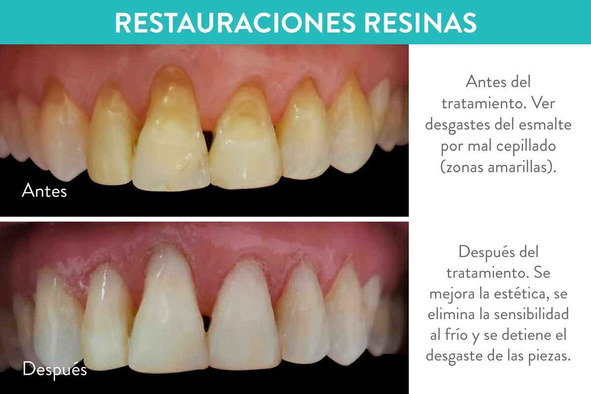 Restauraciones dentales con resinas